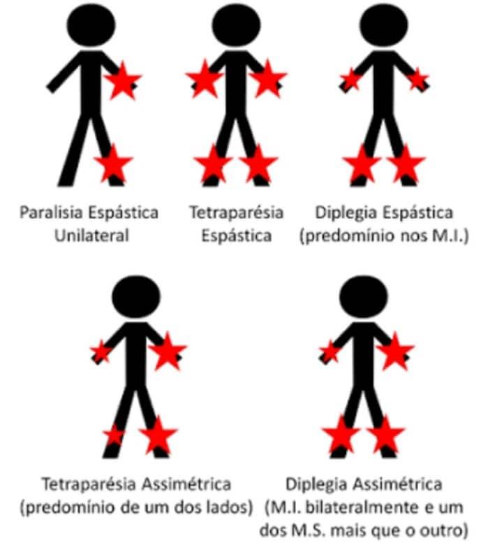 Deficiente Físico: Tipos de deficiência física, nomenclaturas, aquisição de laudo médico e mais 2